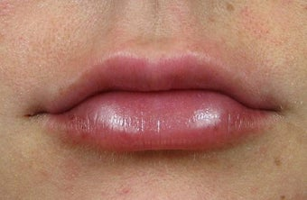 Lip Augmentation with Lip Implants after 1239496