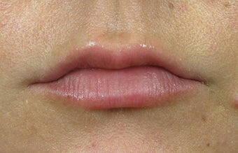 Lip Augmentation with Lip Implants before 1239496