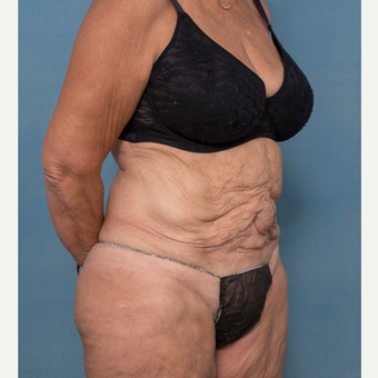 55-64 year old woman treated with Abdominoplasty and Ventral Hernia Repair before 3532569