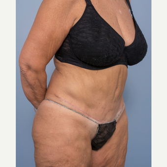 55-64 year old woman treated with Abdominoplasty and Ventral Hernia Repair after 3532569