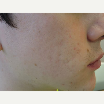 Nodular Acne Cleared Medically