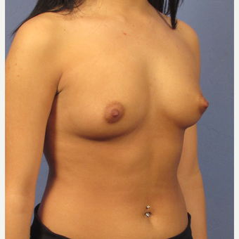 25-34 year old woman treated with Breast Implants before 3077126
