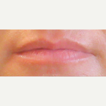 35-44 year old woman treated with Lip Augmentation before 3381486
