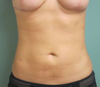 25-34 year old woman treated with Smart Lipo after 2618819