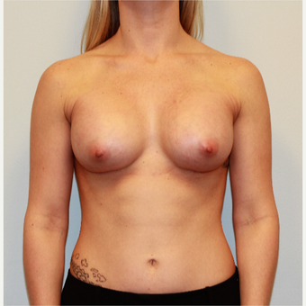 25-34 year old woman treated with Breast Augmentation after 3026702