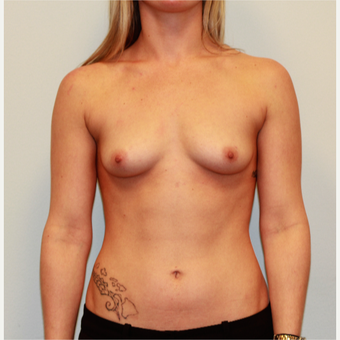 25-34 year old woman treated with Breast Augmentation before 3026702