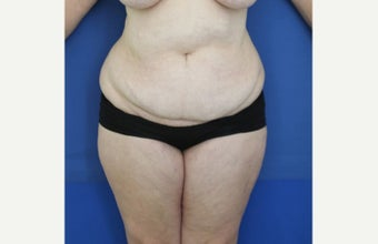 35 years old Tummy Tuck before 1739857
