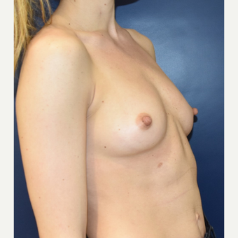 25-34 year old woman treated with Sientra Breast Implants before 3711208