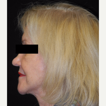 65-74 year old woman treated with MACS Facelift after 3748015