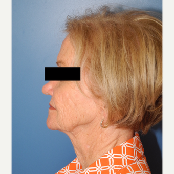 65-74 year old woman treated with MACS Facelift before 3748015