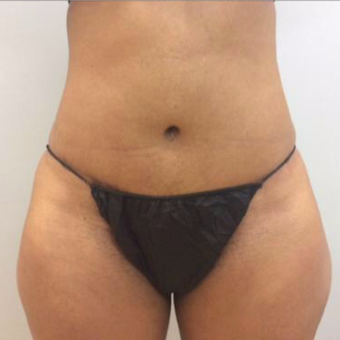 Abdominoplasty after 3327727