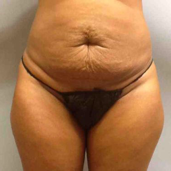 Abdominoplasty before 3327727