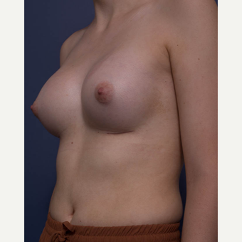 18-24 year old woman treated with Breast Augmentation after 3766936