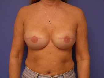 46 yo female bilateral implant breast reconstruction