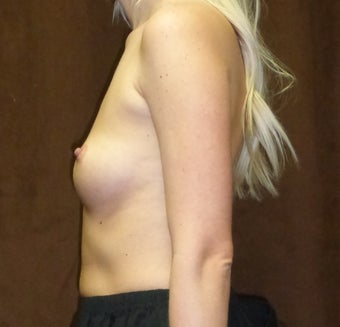 25-34 year old woman treated with Breast Implants 2724197