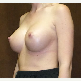 25-34 year old woman treated with Breast Implants after 2724197