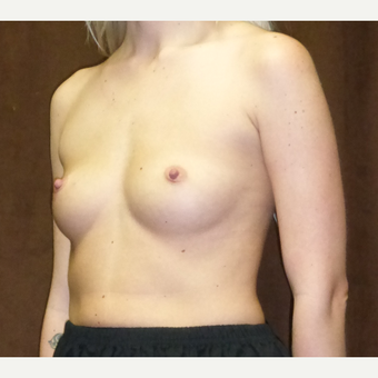 25-34 year old woman treated with Breast Implants before 2724197