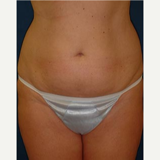 35-44 year old woman treated with Tummy Tuck before 3578049