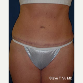 35-44 year old woman treated with Tummy Tuck after 3578049