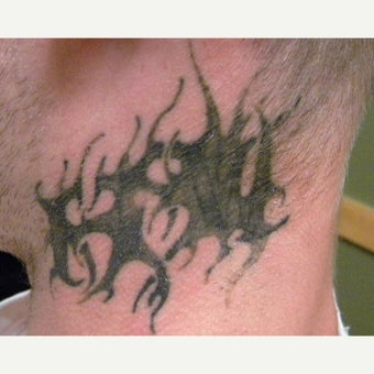 25-34 year old man treated with Tattoo Removal