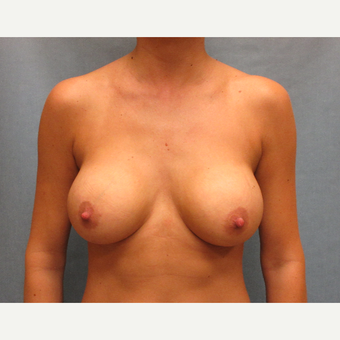 25-34 year old woman treated with Breast Implants after 3635550