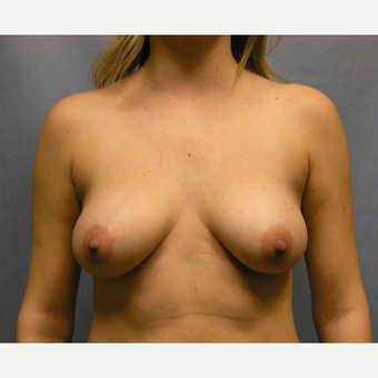 25-34 year old woman treated with Breast Implants before 3635550
