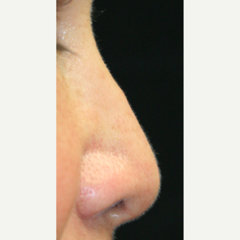45-54 year old woman treated with Non Surgical Nose Job before 3022379