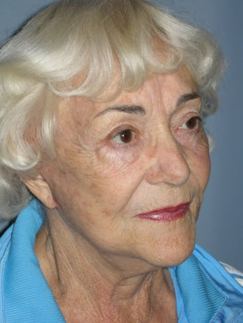 LiteLift™ and Blue Peel® on 79-year-old Woman 1149632