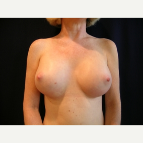 49 year old woman treated with Breast Augmentation after 3840036