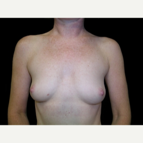 49 year old woman treated with Breast Augmentation before 3840036