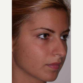 25-34 year old woman treated with Rhinoplasty before 3521205
