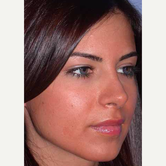 25-34 year old woman treated with Rhinoplasty after 3521205