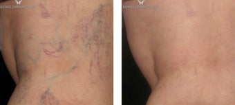 Spider Veins after 1 Sclerotherapy session before 1508162