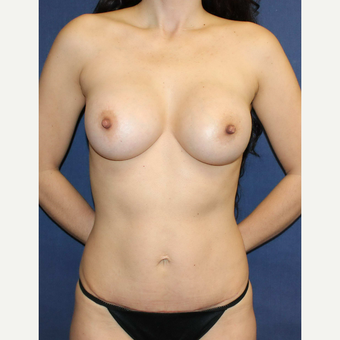 Mommy makeover with Mini Tummy Tuck and Sientra gummy bear breast implants after 3714748