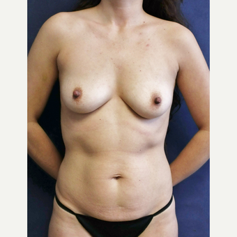 Mommy makeover with Mini Tummy Tuck and Sientra gummy bear breast implants before 3714748