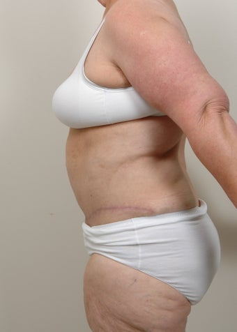 Panniculectomy with Abdominoplasty after 491050