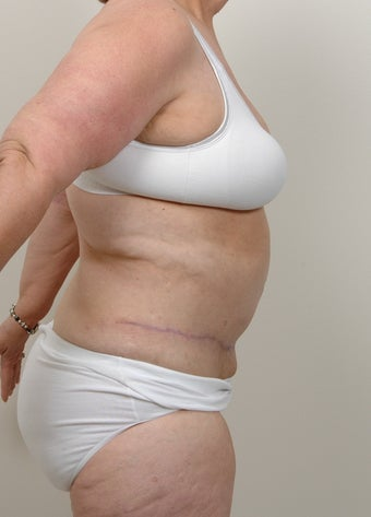 Panniculectomy with Abdominoplasty 491050