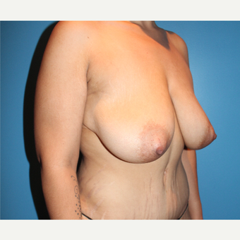 35-44 year old woman treated with Breast Lift before 3498182