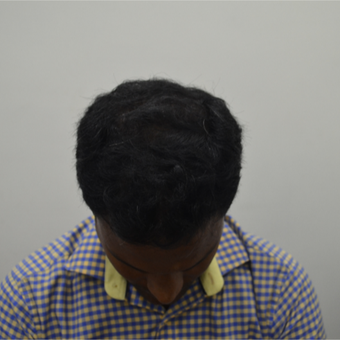 25-34 year old man treated with Hair Transplant after 2710357