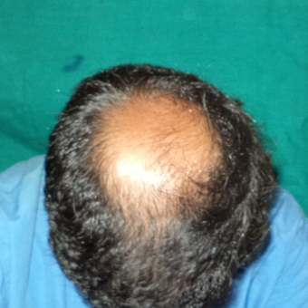 25-34 year old man treated with Hair Transplant before 2710357