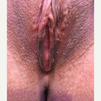 25-34 year old woman treated with Labiaplasty after 3530407