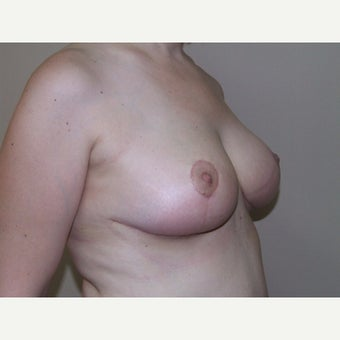 Breast Lift (Mastopexy) after 1911180