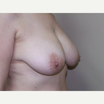 Breast Lift (Mastopexy) before 1911180