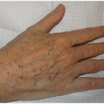 55-64 year old woman treated with IPL before 3091049