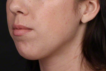 25-34 year old woman treated with Kybella after 2608153