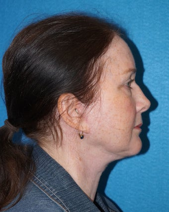 56 year old woman treated with Facelift 2493183