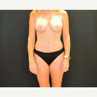 Tummy tuck and revision breast augmentation and lift after 3743047