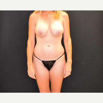 Tummy tuck and revision breast augmentation and lift before 3743047