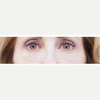 45-54 year old woman treated with Eye Bags Treatment after 3698487