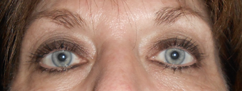 Botox and Exilis around the eys after 1242371